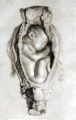 Engraving (from the drawing above) published in The Gravid Uterus