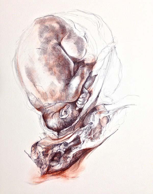 Work in progress after Rymsdyk (Dr Jac Saorsa)