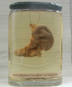 Dissection of the internal ear. Hunterian Museum & Art Gallery collections GLAHM 119612
