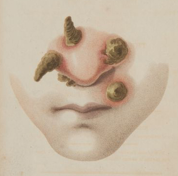 Syphilitic pustules on the nose of a patient. From the title page in Richard Carmichael's Observations on the symptoms and specific distinctions of venereal diseases. Sp Coll DK.13.24