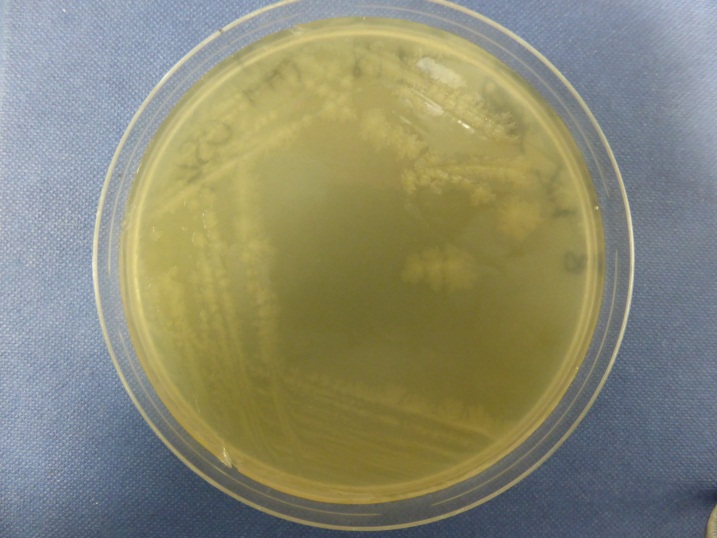 Clostridium difficile on an agar plate